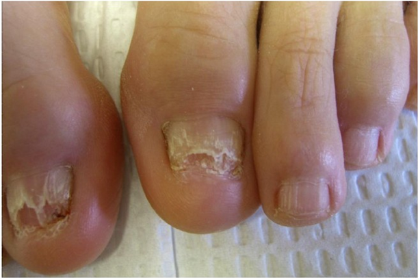 Fungal Nail Infections-Symptoms-Causes-Cures | Nail Fungus Cream